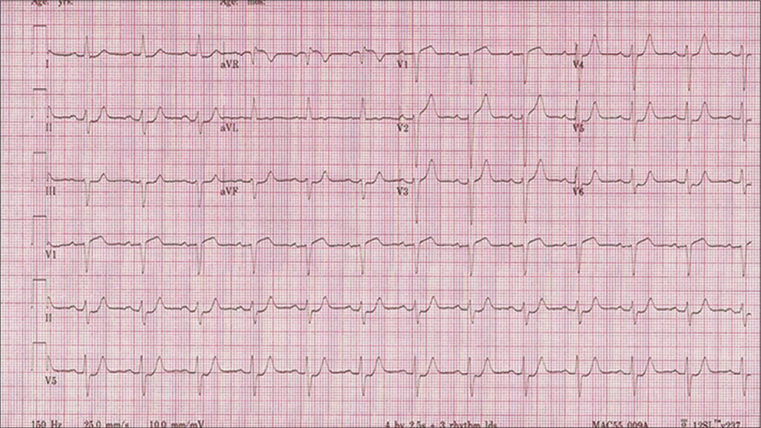 Figure 2: Electrocardiogram recorded during chest pain on the day of presentation.