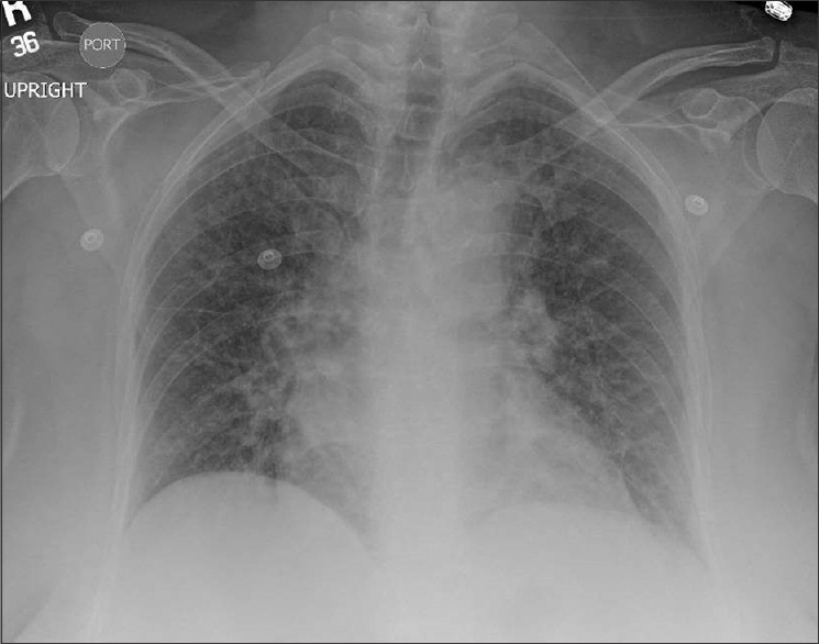 Figure 1: Portable chest X-ray with no focal abnormalities.
